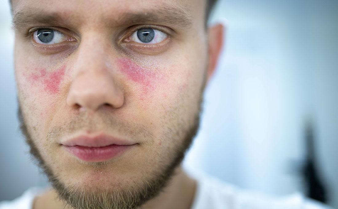 Persona affetta da Lupus