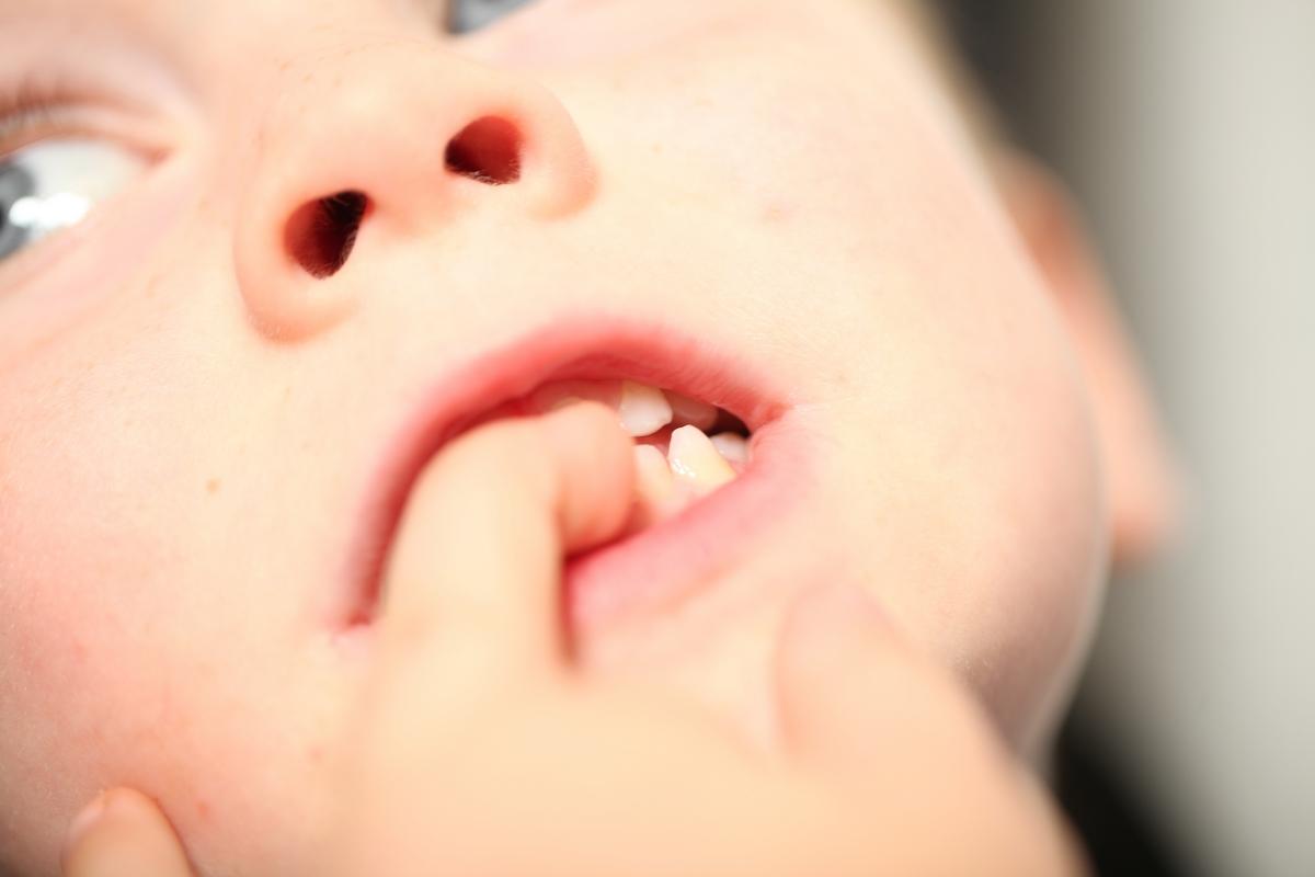 come non fare mangiare le unghie ai bambini