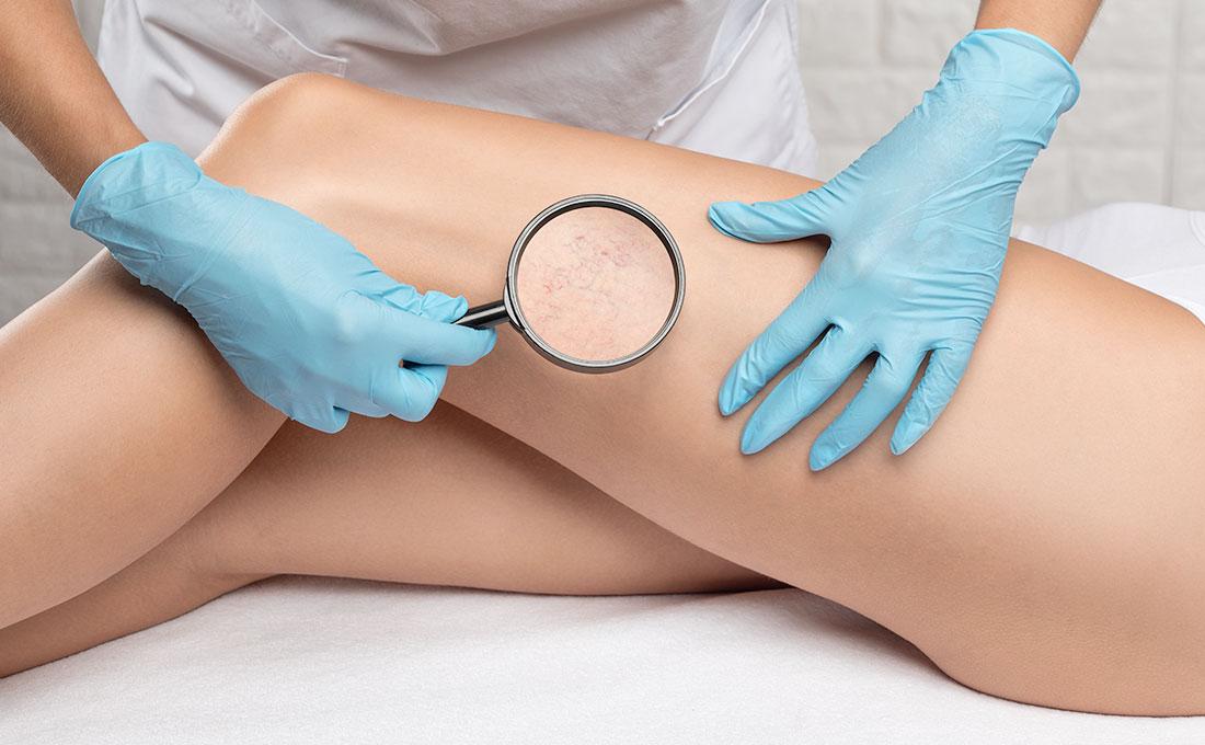 Metodi per prevenire capillari rotti