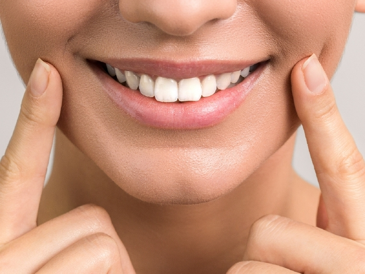 sbiancamento dente non vitale