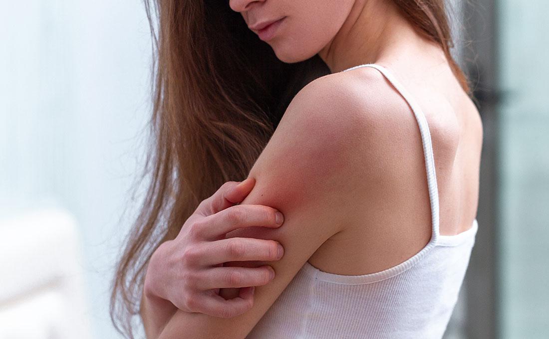 Come affronta la dermatite seboroica una giovane ragazza