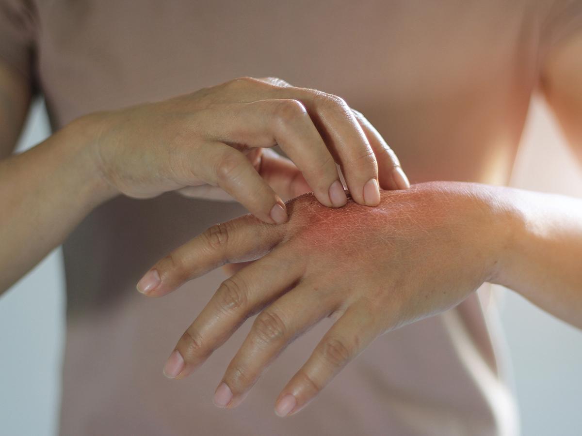 la dermatite
