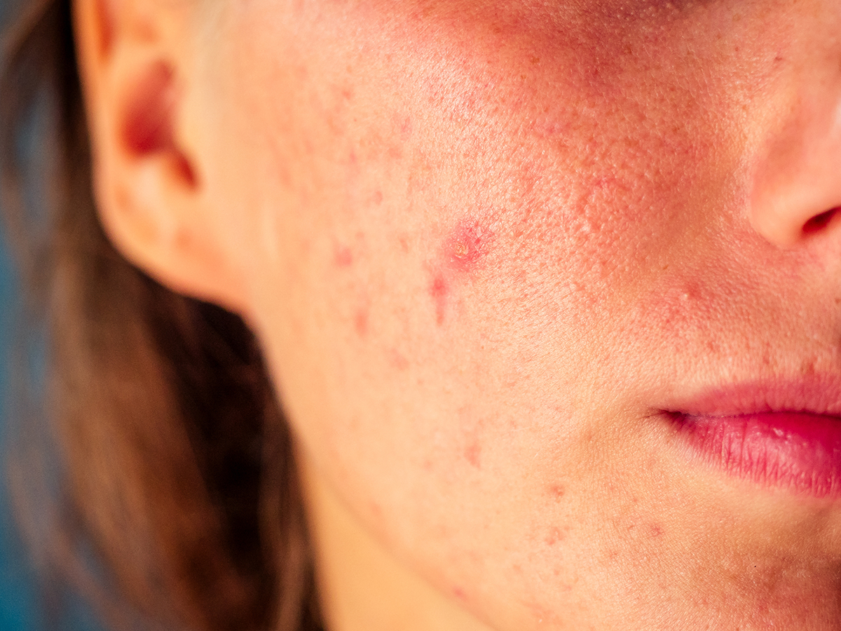 acne mascherina
