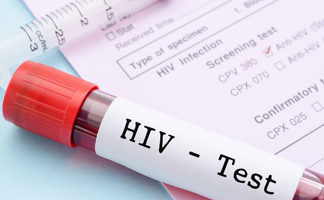 Nuovi studi hiv in congo