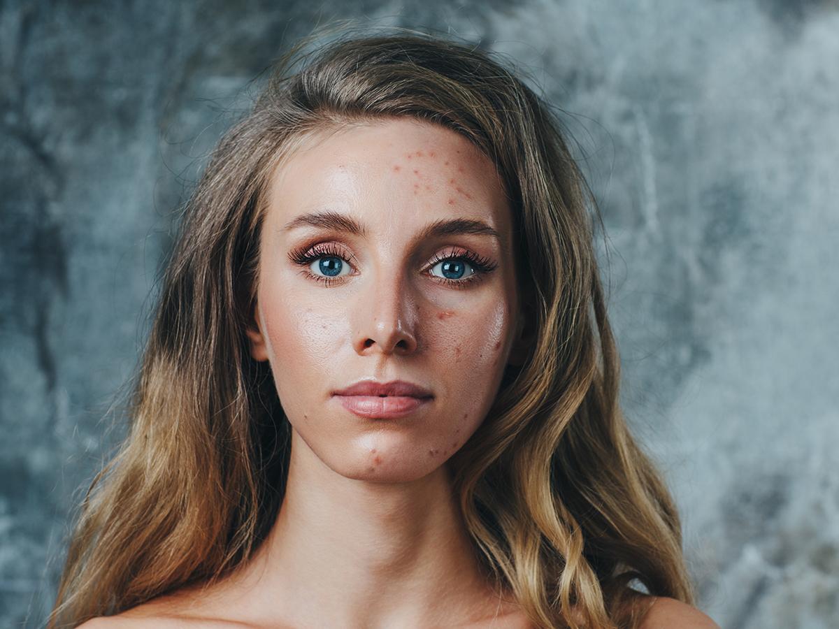 acne cistica