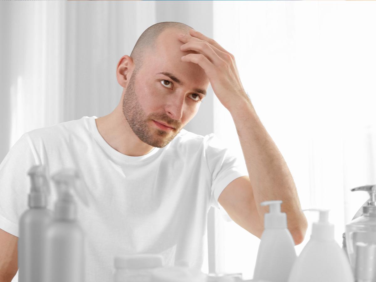 Alopecia androgenetica: cause e cure - A Good Magazine
